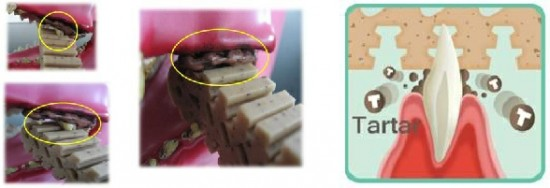 KaNoodles 緊貼牙齒、清牙縫去牙垢